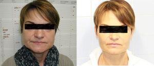 Prima e dopo intervento Maxillo-Facciale