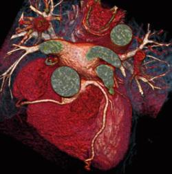 immagini di TAC al cuore